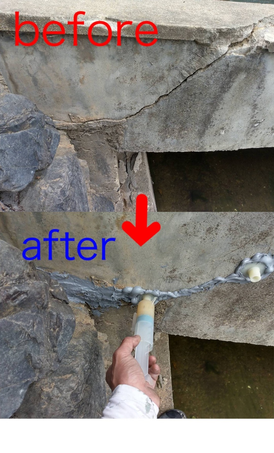 京都市右京区R邸  橋脚構造クラックエポキシ樹脂注入(低圧シリンダー工法)のサムネイル